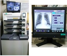 デジタル画像診断